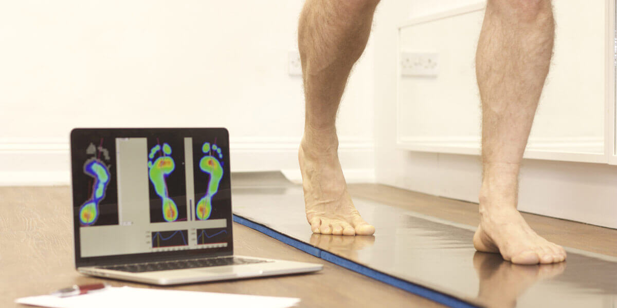 computer gait analysis Norwich